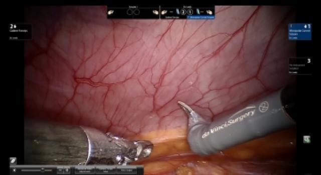 Robotic Umbilical Hernia Repair with Mesh - Steve Leeds, MD